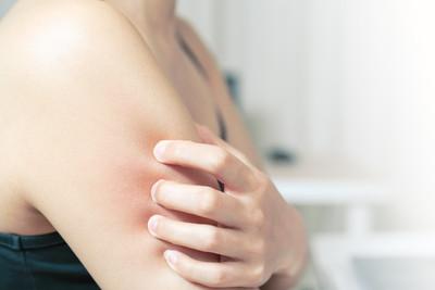紫外線可治皮膚病? 專家列出「可用疾病」...3種人不適用!
