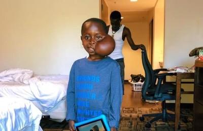 穆湯波資助 8歲巨瘤男童赴美手術..因藥物過敏死亡