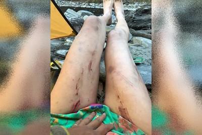 3周前自曝「墜谷數米」!比基尼登山客大腿全血痕 爆哭:命是撿回來的