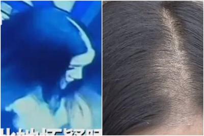 酒店睡1晚「頭髮少掉一大塊」!美女頭禿驚呆 懷疑有人闖房剃她頭