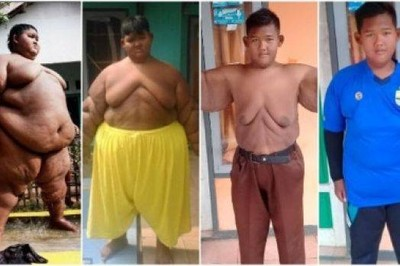 「世上最胖男孩」縮胃 追逐足球夢減重105公斤