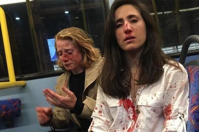 拒絕表演親嘴 女同空姐和伴侶遭反同流氓暴打!