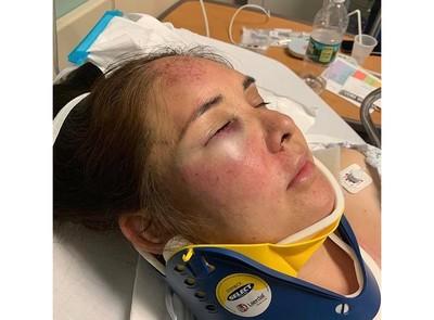 兒子學校遭嗆:滾回墨西哥! 她怒投訴隔天竟被13歲霸凌者打到腦震盪