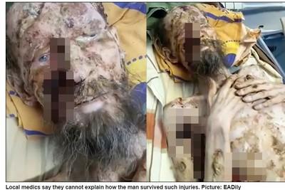 假新聞!俄男「被熊綁架」1個月變喪屍 獨立調查真相曝光