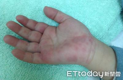 三年來首見!高雄1歲童「腸病毒71型併發重症」3天死亡