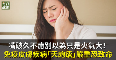 嘴破久不癒別以為只是火氣大 免疫皮膚疾病「天皰瘡」嚴重恐致命