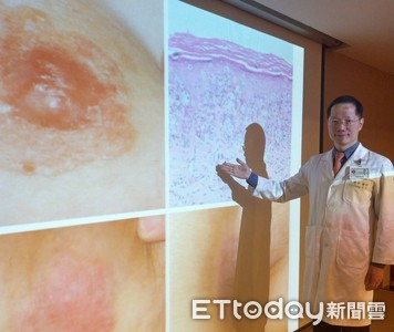 胯下紅疹搔癢羞就醫 他拖一年成「罕見癌」...1/3脊椎被吃掉