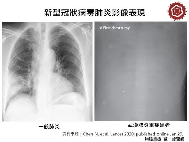 ▲「新冠肺炎vs.呼吸道感染」差在哪?一張圖秒看懂。(圖/今健康提供)