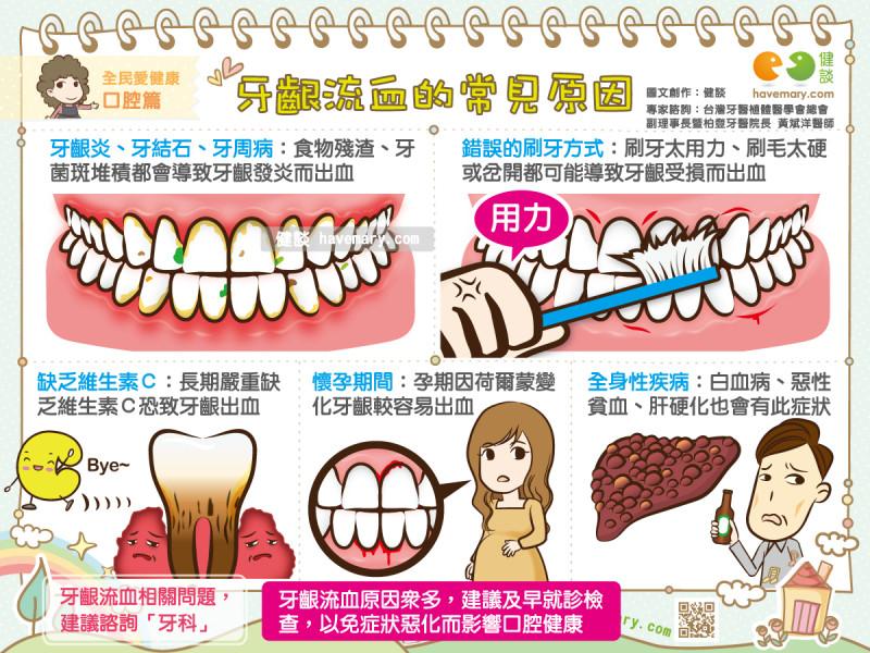 牙齦流血了!醫曝「常見5大原因」…小心已染3種病。(圖/健談授權提供)