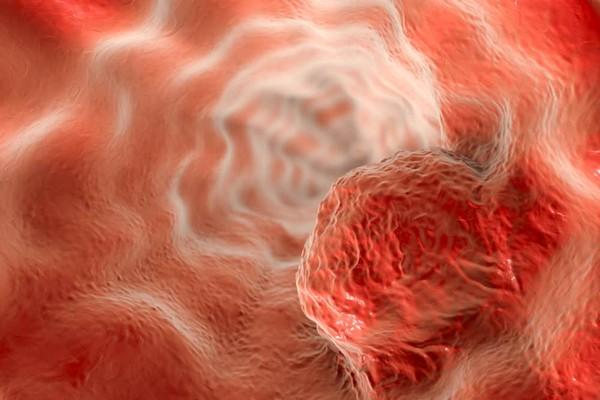 長腫瘤=癌症?從「出現3部位」初判罹癌機率高低 旋風式爆長慘了