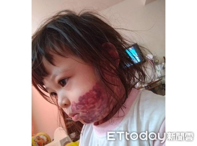 左臉大片色斑!水電工爸「獨籌醫藥費」治女兒...一次數萬也要扛